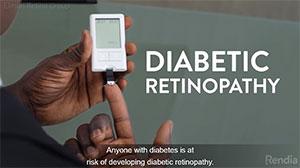 diabetic retinopathy video
