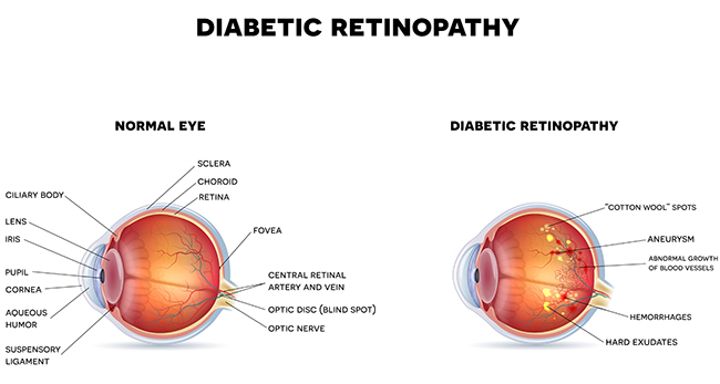 Diabetic Retinopathy Treatment in Baltimore