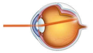 Retinal Laser Therapy Illustrated
