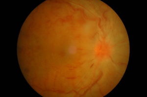 Retinal Vein Occlusion Treatment Baltimore