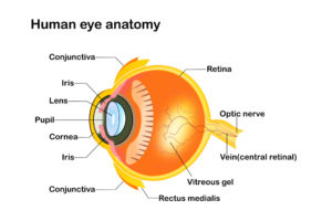 What Is a Vitrectomy