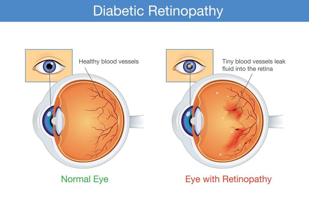 Diabetic Retinopathy Treatment in Baltimore